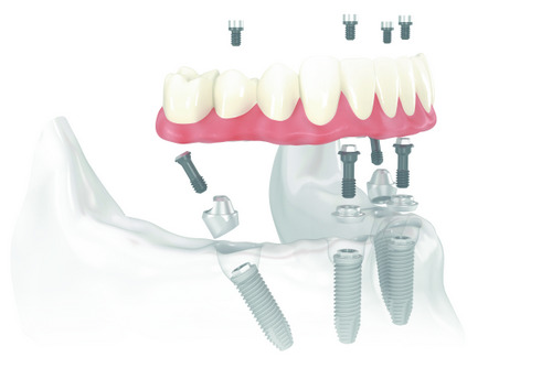A diagram of how an all-on-4 dental implant system works.
