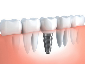 Dental Implants Huronia Oral Surgery Group Ontario L4N 8J6