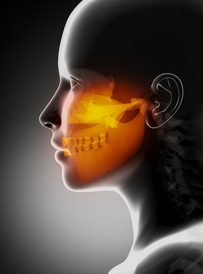 X-ray diagram of the maxillofacial bones