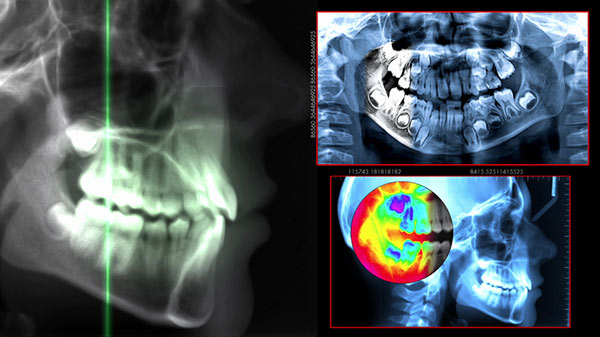 An x-ray which is a crucial aspect of the Dental Implant Placement Process in Barrie, Ontario